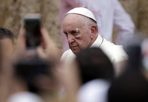 """""""Behúztak egyet."""" Ferenc pápa vérző sebbel!"""